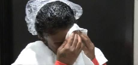 Cauchemar terminé: un chirurgien enlève la super-glu des cheveux de Tessica après 4 heures de traitement