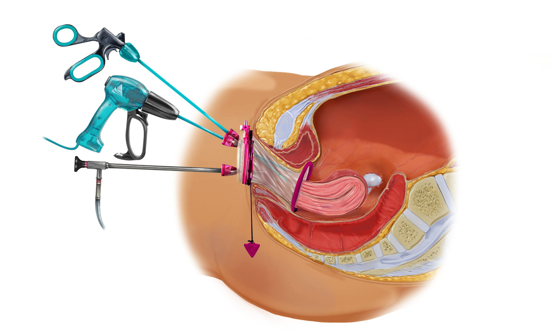 Zo wordt de baarmoeder via de vagina verwijderd.