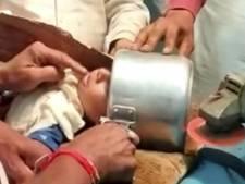 Un bambin coincé dans un autocuiseur libéré à la disqueuse