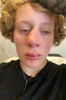 In ziekenhuis geslagen Frédérique (14) wil geen cel voor belagers: 'Ze is niet uit op wraak'