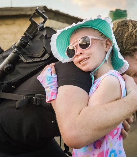 Apeldoornse fotograaf schiet Afrikaans albinomeisje Ruth te hulp