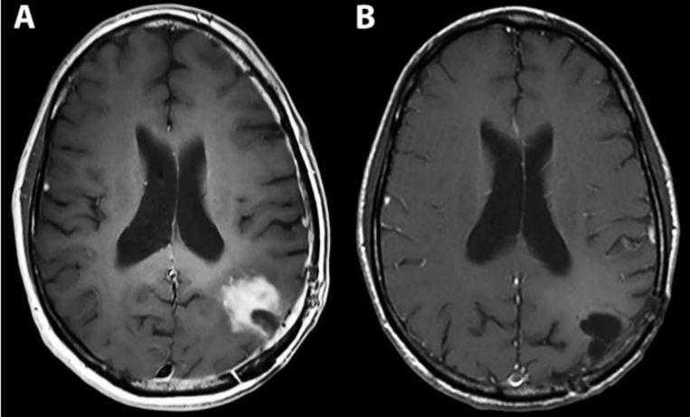 Links: de hersenen met duidelijk zichtbare tumor, rechts: negen maanden na het virus-infuus. Beeld