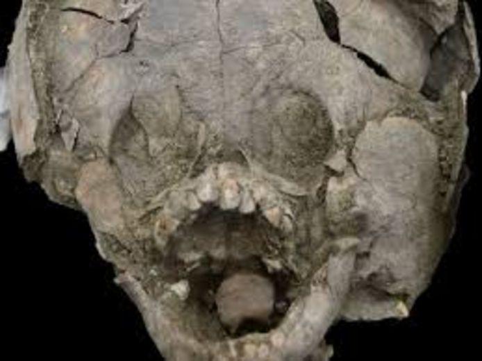 De baby's droegen de schedels van andere kinderen als een soort van helm rondom hun hoofd.