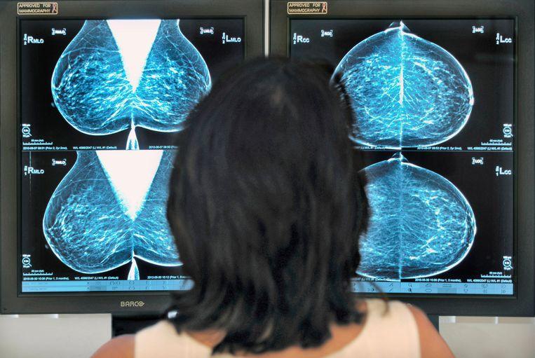 Screening op afwijkingen door een arts bij het bevolkingsonderzoek borstkanker. Beeld Hollandse Hoogte / Flip Franssen