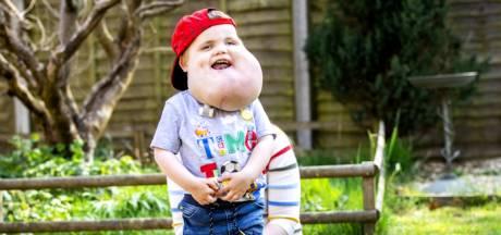 Un petit garçon, né avec un énorme kyste au visage, déjoue les pronostics