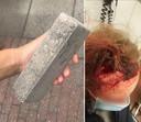 Het slachtoffer in de bus liep meerdere verwondingen op, onder meer een hersenschudding.