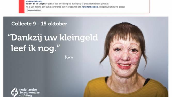 Foto van vrouw met brandwonden toch op Facebook