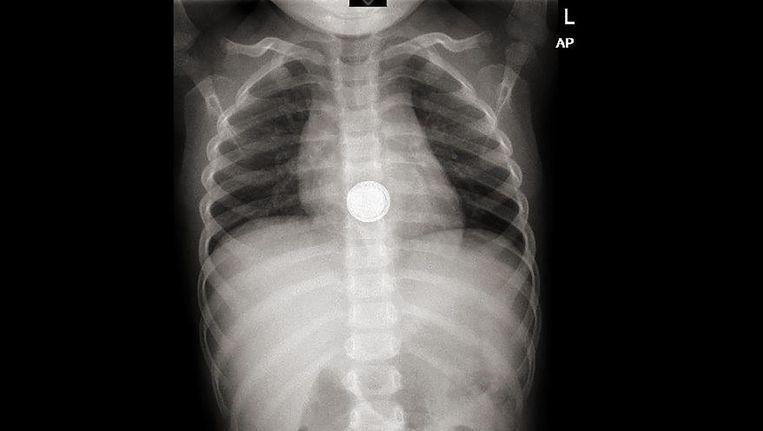 Röntgenfoto van een klein kind dat een knoopcelbatterij heeft ingeslikt. Beeld -