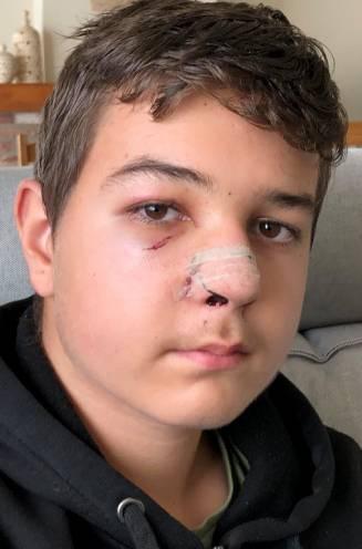 """Jongen van 14 op weg naar bushalte bij klaarlichte dag in elkaar geslagen: """"Schrik om nog naar school te gaan"""""""