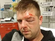 Slachtoffer kopschopincident bij Trekkertrek overspoeld met reacties, recherche zoekt camerabeelden