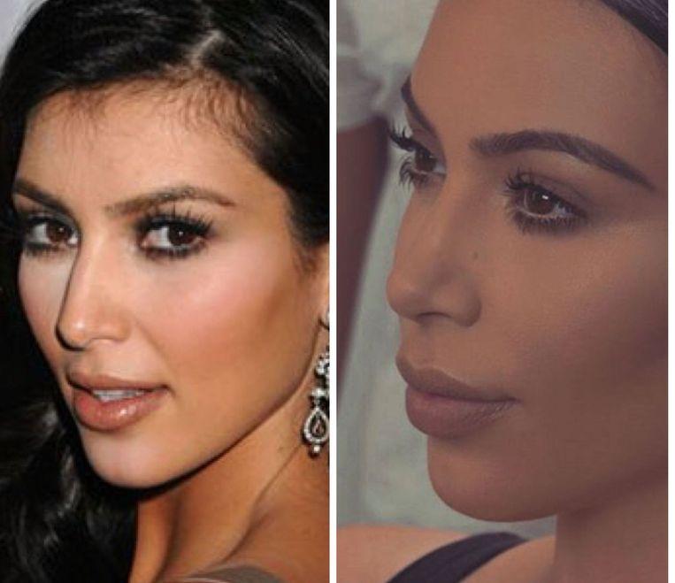 De neus van Kim Kardashian is al veel veranderd.