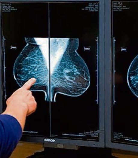 Bevolkingsonderzoek borstkanker van start in Dordrecht