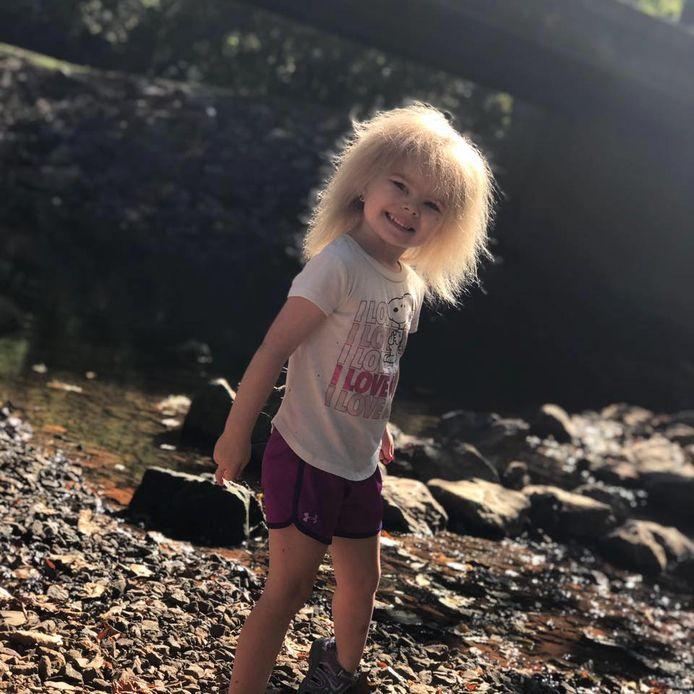 La petite Zoey pourrait avoir des cheveux normaux à l'adolescence.