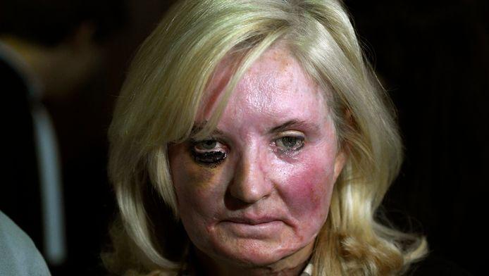 Slachtoffer Marina Tijssen is voor het leven verminkt.
