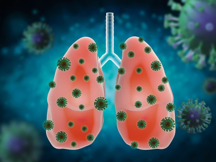 Het coronavirus slaat met name toe in de longen. Het medicijn dat wordt onderzocht gaat vochtophoping in de longen, iets wat de kans om het virus te overleven bijzonder verkleint, tegen.