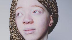 """Tienermodel met albinisme verschijnt in Vogue en wil anderen inspireren: """"Ik ben dankbaar voor mijn huidskleur"""""""