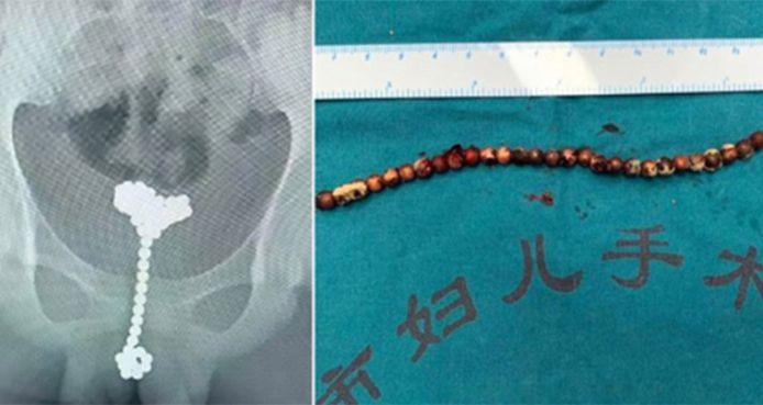 Le garçon souffrait de douleurs abdominales sévères, deux mois après avoir inséré les balles.