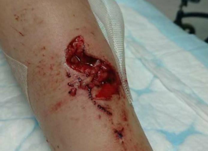 De verwondingen van het meisje.