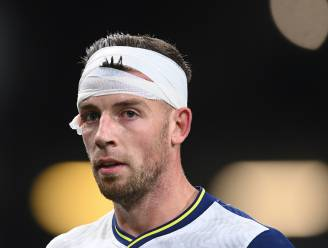 Als Alderweireld maar mag spelen in 'zijn' Antwerpen: verdediger komt gehavend uit de strijd na elleboog