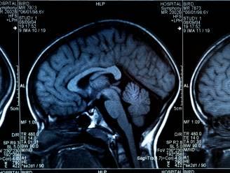 Modern menselijk brein dook pas 1,7 miljoen jaar geleden voor het eerst op