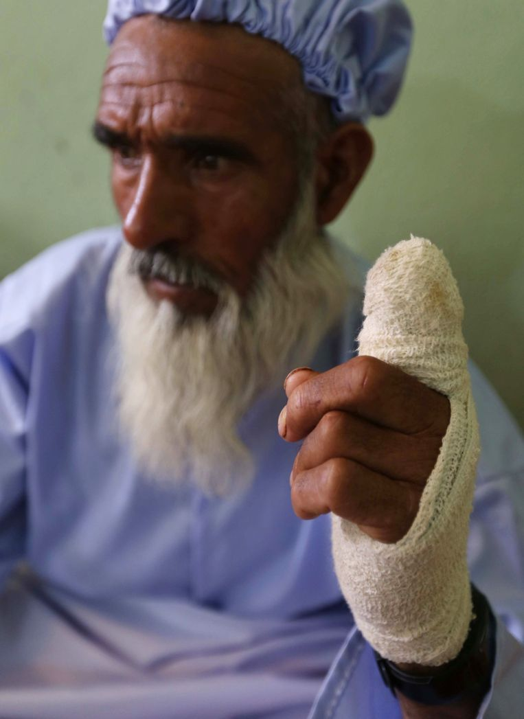 epa04258179 An Afghan voter whose inked finger was cut off by Taliban miliitants as punishment for casting their votes, receive medical treatment at a hospital in Herat, Afghanistan, 15 June 2014. There were some 150 attacks across the country during the elections on 14 June, killing over 60 people, including about 20 assailants, government officials said. More than 7 million Afghans voted in the run-off for the new president, officials said, in announcing an unexpectedly high turnout, despite scores of attacks across the country. The turnout was better than the first round, which saw 6.6 million voters after 400,000 ballots were thrown out as fraudulent. Thirty-eight per cent of the voters on 14 June were women, the Election Commission said.  EPA/JALIL REZAYEE Beeld EPA