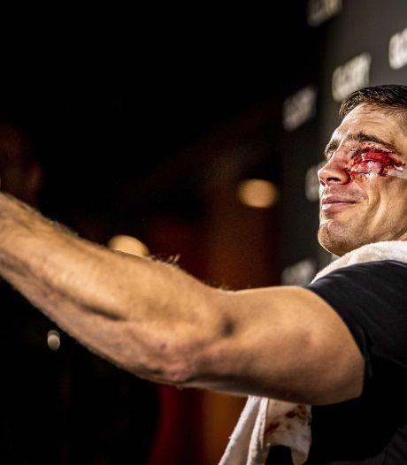 Gezichtsherkenning werkt niet meer bij Rico na spectaculair en bloederig titelgevecht