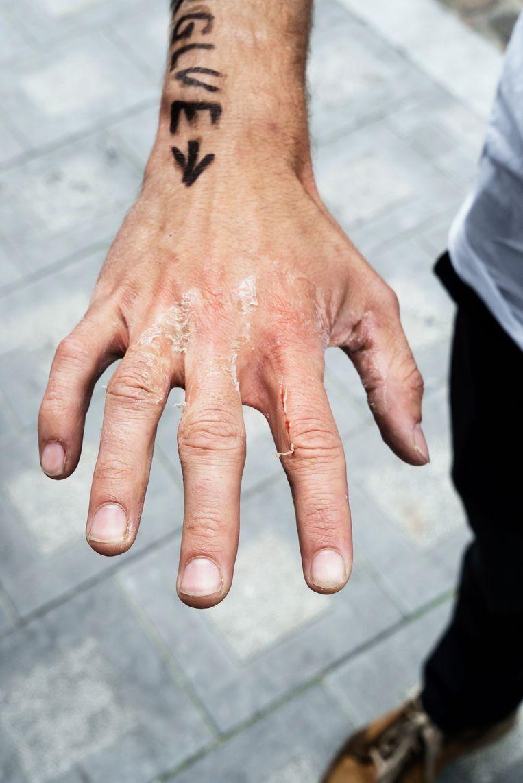 Een actievoerder toont zijn 'losgerukte' handen.  Beeld Eric de Mildt