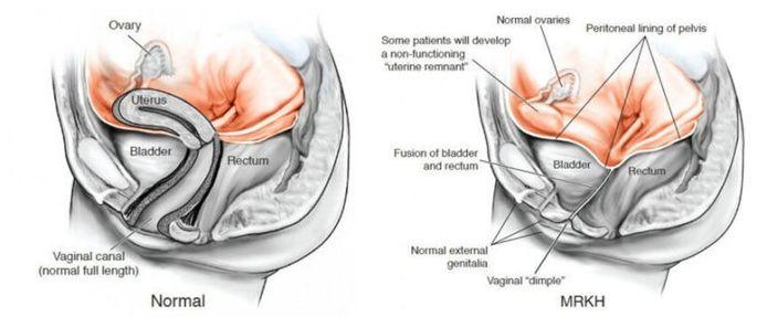 Geboren worden met het MRKH-syndroom betekent geboren worden zonder baarmoeder en vagina. Soms is er een klein kuiltje op de plaats van de vagina. De eierstokken zijn wel ontwikkeld en functioneren normaal.