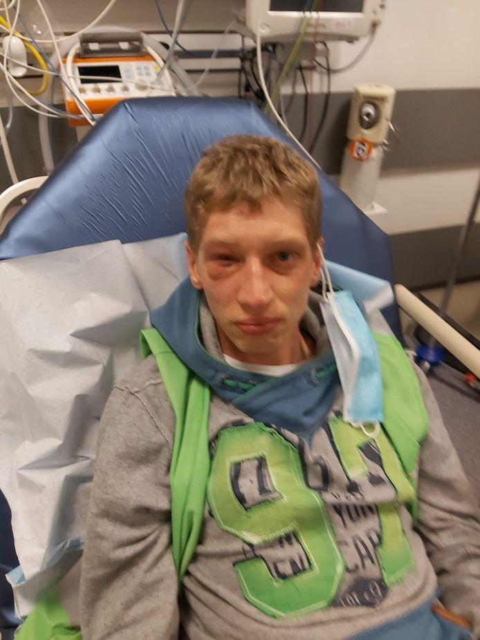 Kevin Janssen (29) werd dinsdag zonder enige aanleiding in mekaar geslagen toen hij in het park zwerfvuil ging ruimen