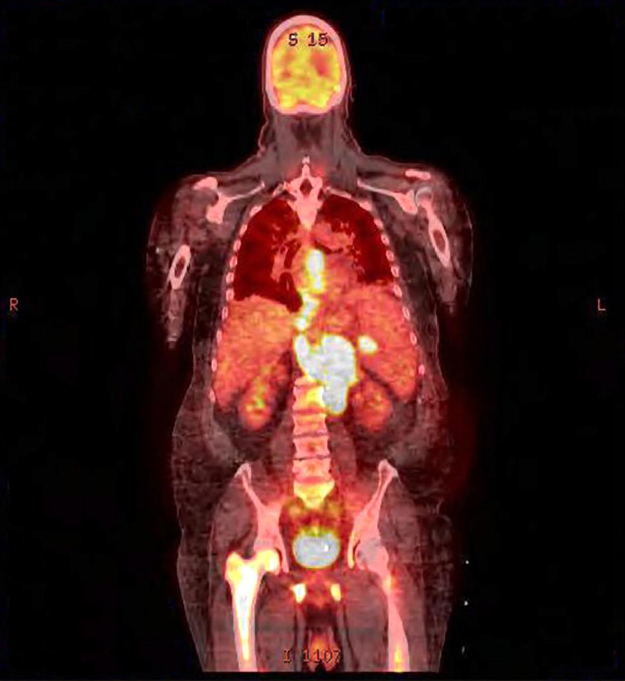 Beeld van een PET-scan voor de behandeling van een tumor. De fel oplichtende gebieden zijn tumoren. Beeld