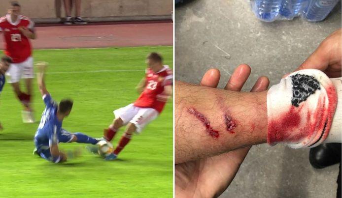 Links: de tackle van Laifis, rechts: de schade bij Petrov.