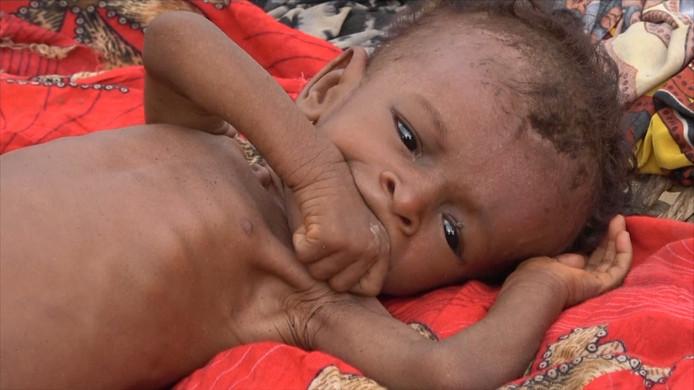 Door de burgeroorlog neemt het aantal doden door ondervoeding in Jemen toe. Het Al-Thalouth Health Centre vangt gezinnen op. De kinderen worden gemeten en gewogen.