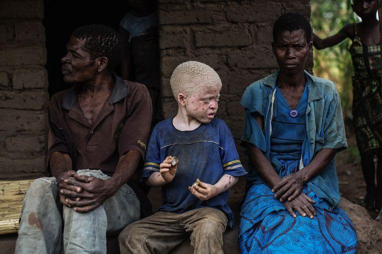 Kind met albinisme tussen zijn ouders in Malawi.  Beeld AFP