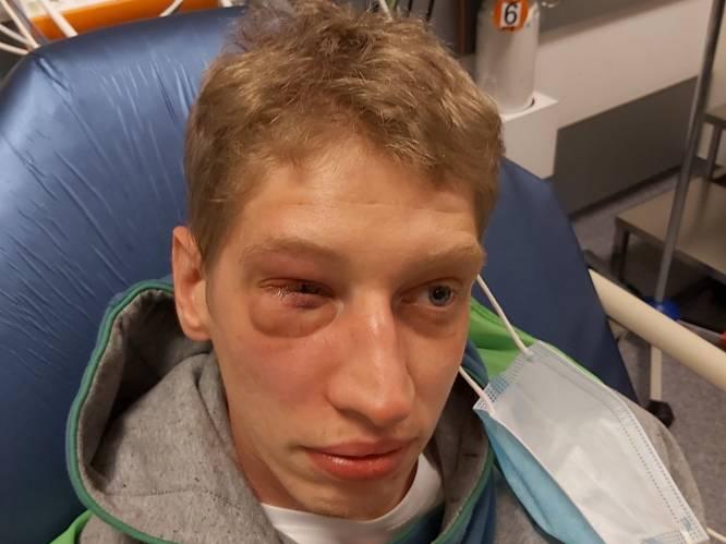 """Groep tieners slaat Kevin (29), die mentale beperking heeft, hersenschudding en gebroken oogkas: """"Hij durft niet meer buiten te komen"""""""