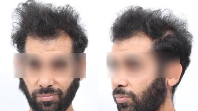Verdachte van bioscoopmoorden Ergun S. verhoord: 'Ik dacht dat ik een portiek inliep'
