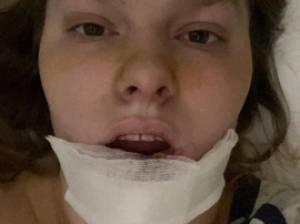 """Jonge vrouw verliest onderlip na aanval door hond: """"De eigenares van de hond probeerde hem terug te roepen, maar dat hielp niet"""""""