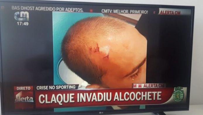 De foto van het hoofd van Bas Dost tijdens het Portugese journaal.