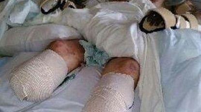 Man verliest handen en benen door likje van hond