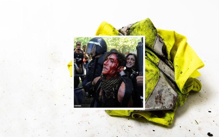Deze foto van bebloede demonstranten werd niet genomen tijdens een gele hesjes-protest, maar in Madrid in 2012 Beeld