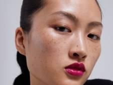Les taches de rousseur d'un mannequin font polémique en Chine