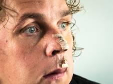 Beveiliger Niels Boomkamp is voortaan 'de man met het litteken'