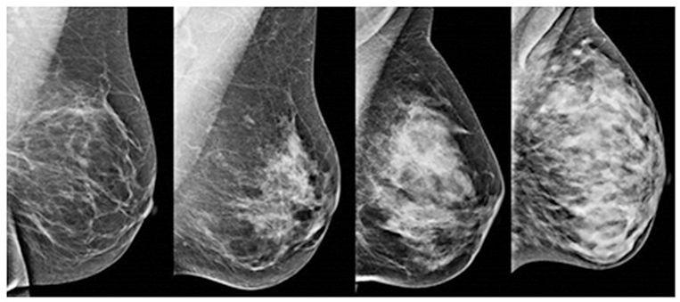 Vanaf links: weinig dicht tot heel dicht borstweefsel. Hoe dichter het borstweefsel, hoe moeilijker het is om tumoren te ontdekken op een mammografie. Beeld UMC