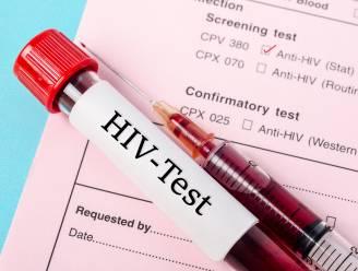 Wetenschappers ontdekken nieuwe en zeldzame variant hiv