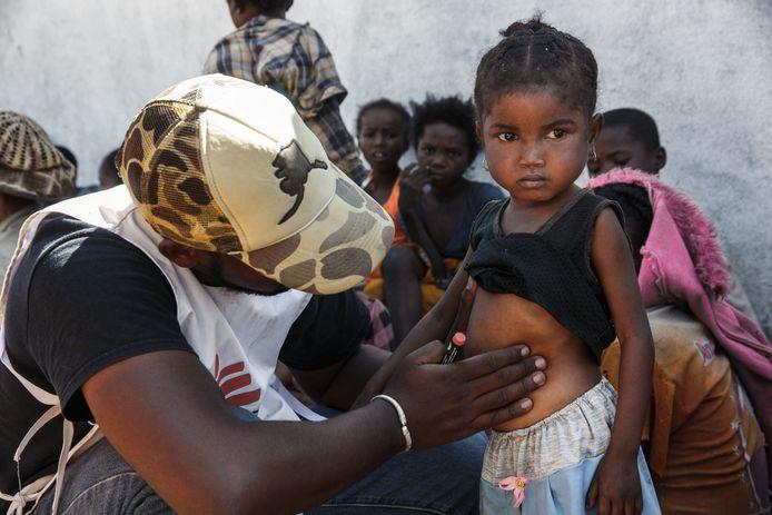 Une infirmière de la clinique mobile de Médecins sans frontières (MSF) inspecte une petite fille le 2 septembre 2021. Depuis mars 2021, MSF a mis en place une présence permanente dans le Sud de Madagascar, à Amboasary Atsimo et Ambovombe, afin de venir en aide aux populations en urgence. Depuis juin 2021, MSF a mis en place plusieurs cliniques mobiles pour traiter les cas les plus graves de malnutrition modérée et sévère.