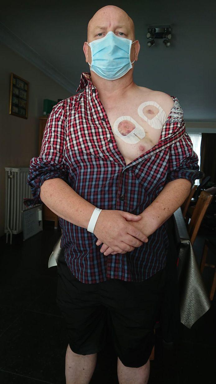 Robert werd twee keer in de borst gebeten door een busreiziger.