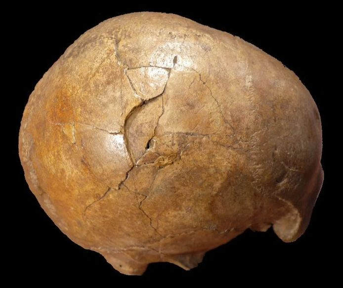 Le crâne connu sous le nom de Cioclovina calvaria.