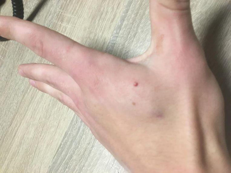 De chip werd in de hand gepiercet, tussen duim en wijsvinger.