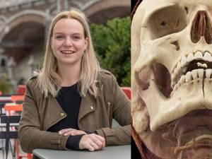 Fractures, dents cassées, bouches détruites: récits des dangers de la trottinette électrique