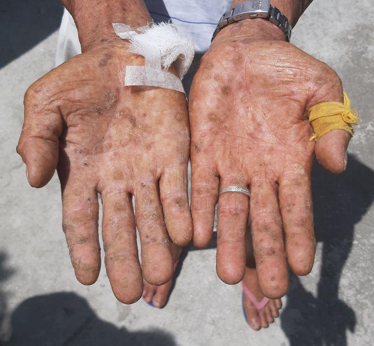 De rafelige handen van door arseen vergiftigd slachtoffer en rijstboer Sabado.  Beeld  Hans Nauta
