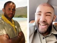 """Mohamed de """"Koh-Lanta"""" défiguré après une greffe de cheveux"""